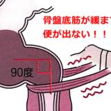 直腸性便秘の原因となるアニスムスとは?解消法は?