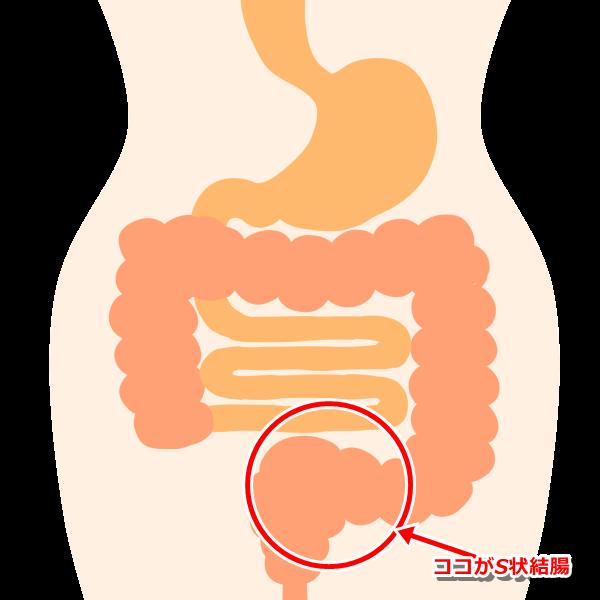 S状結腸の場所